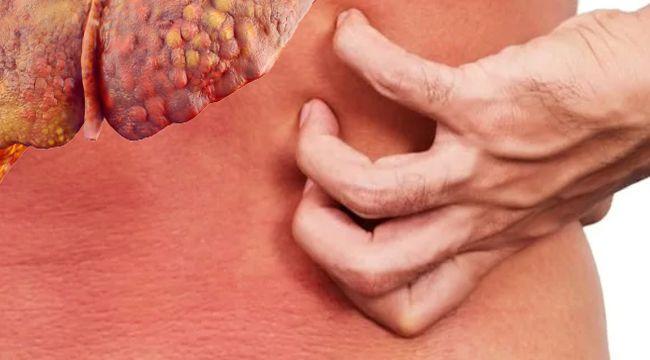 Yağlı karaciğer hastalığı belirtisi olarak ciltte hoş olmayan his